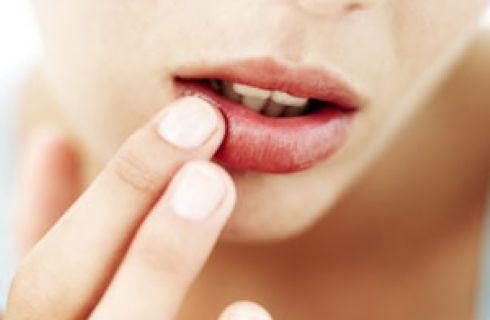 Rimedi Naturali Herpes Labiale